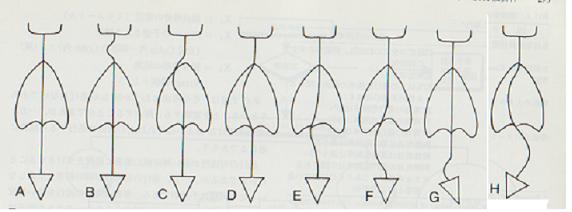 側彎種類 (2).png