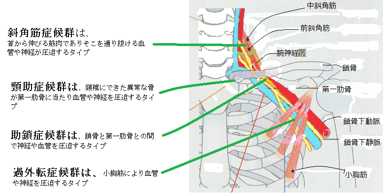 胸郭出口3.png
