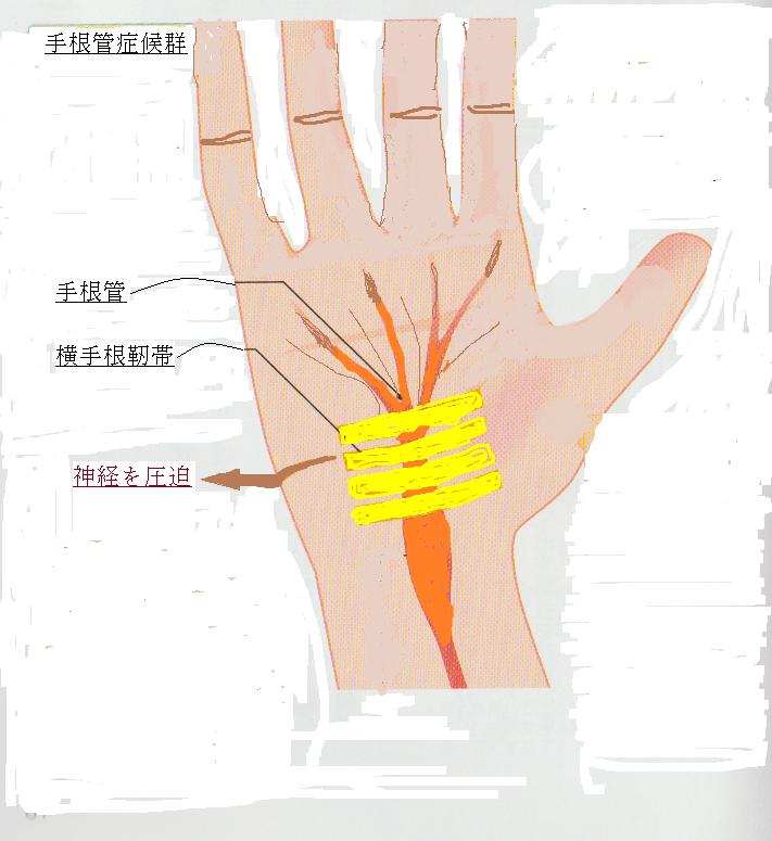 2手根管症候群3.png